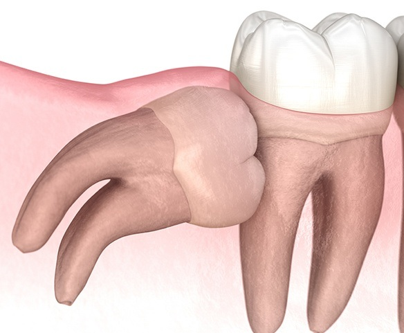 Animated impacted wisdom tooth