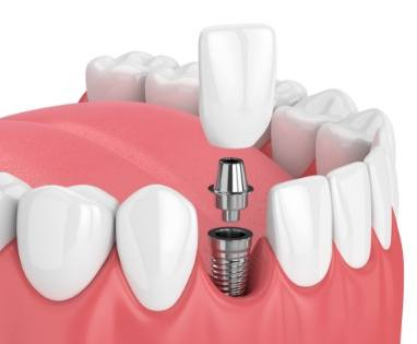 Animated dental implant supported fixed bridge