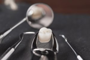 Tooth in forceps after tooth extractions in Lincoln